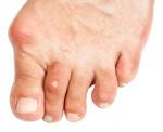 Combien de temps se soigne le microorganisme végétal sur les ongles